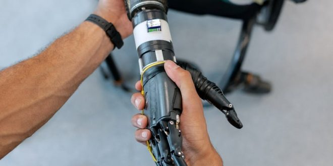 person holding prosthetic arm